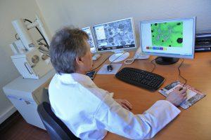 Observation au microscope électronique à balayage (MEB)