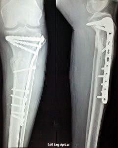 Radiographie d'implant médical en titane